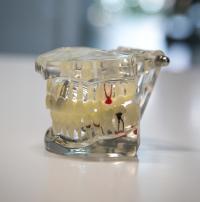 zubnenahrady-zvolen-2